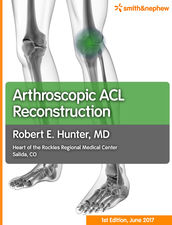 ACL ebook