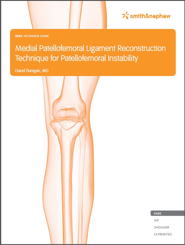 Medial Patellofemoral Ligament Reconstruction Technique for Patellofemoral Instability Guide