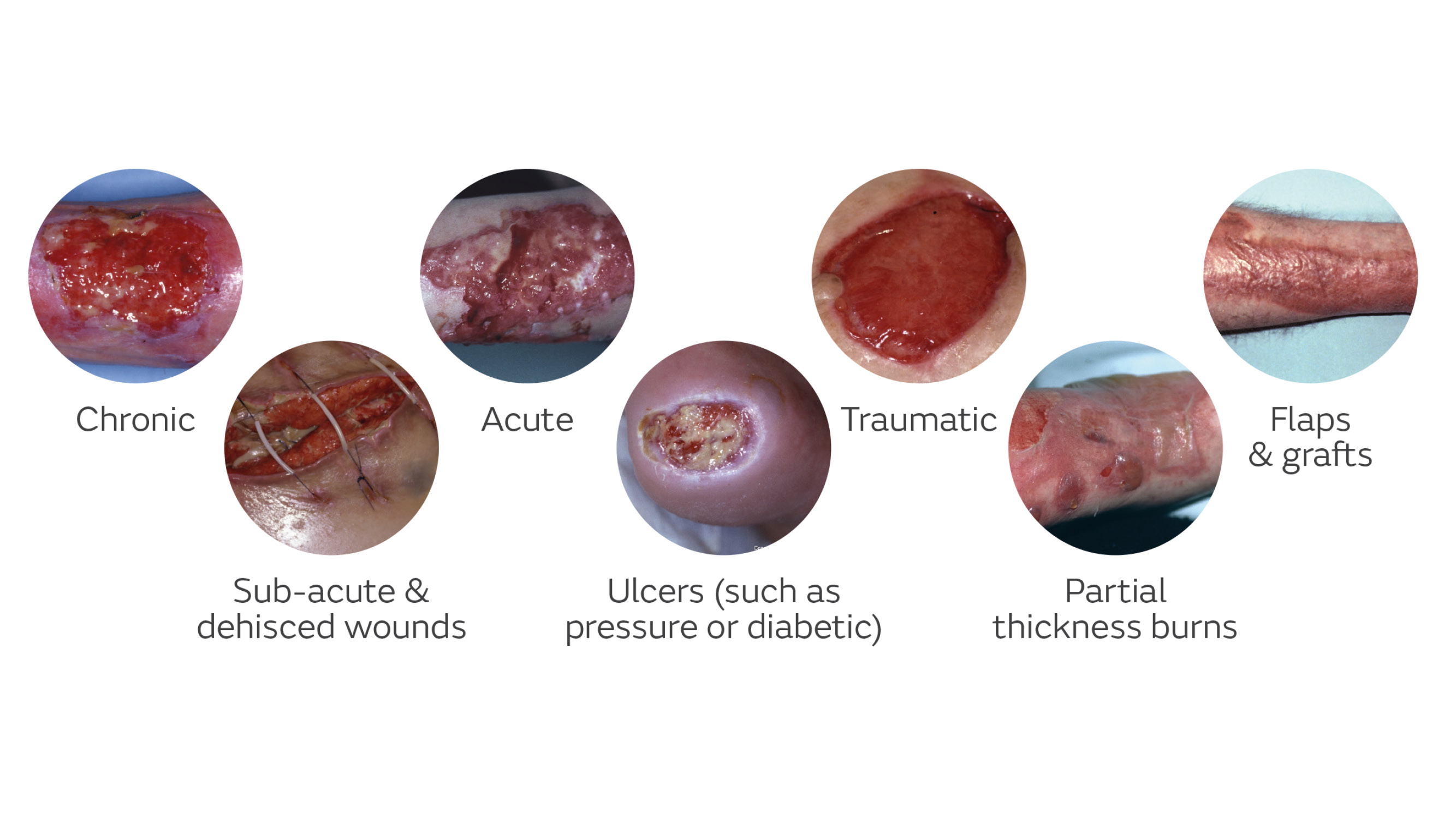 wounds that are suitable for NPWT or wound VAC