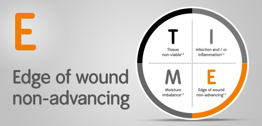 How to use the T.I.M.E. assessment tool when wound edges are not advancing or the wound is stalled.