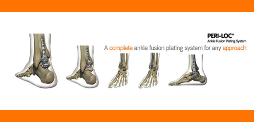 PERI-LOC Ankle Fusion web banner