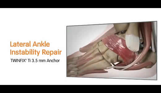 TWINFIX Ti suture anchors for ankle instability