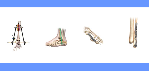 foot and ankle fracture management