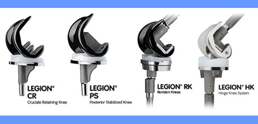 LEGION Total Knee System