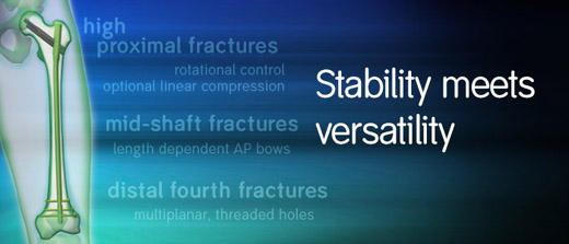 Stability and Versatility for high proximal fractures, mid-shaft fractures, distal fractures