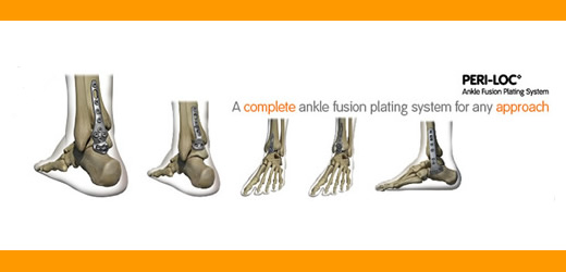 PERI-LOC Ankle Fusion banner