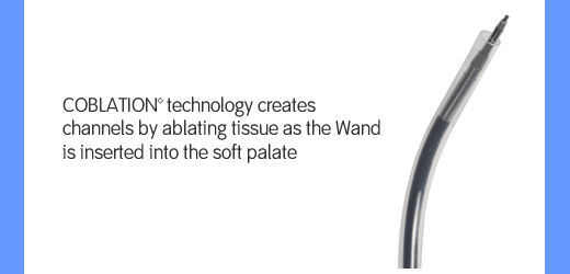 COBLATION technology creates channels by ablating tissue as the Wand is inserted into the soft palate.