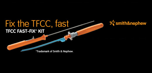 TFCC FAST-FIX Wrist Repair Kit