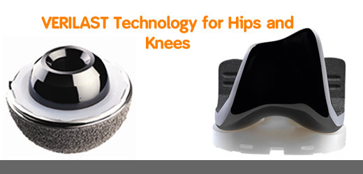 VERILAST Technology for hips and knees