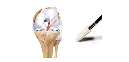 Acl  Pcl Reconstruction