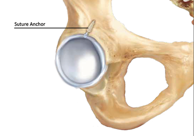 hip labral repair with suture anchor