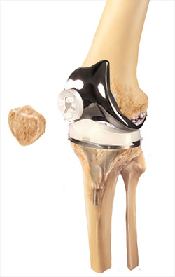 Knee Replacement Smith Amp Nephew Us Patient