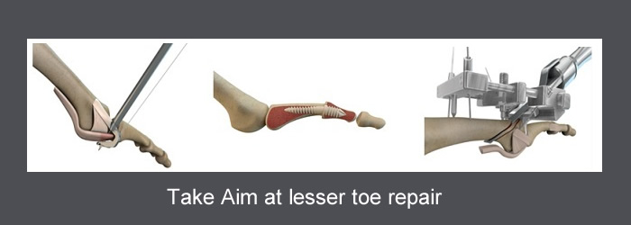 HAT-TRICK Lesser toe repair
