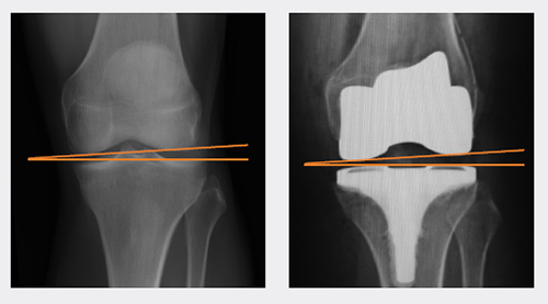JOURNEY II TKA normal position patella track