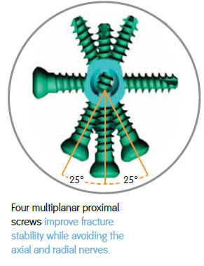 four multiplanar proximal screws