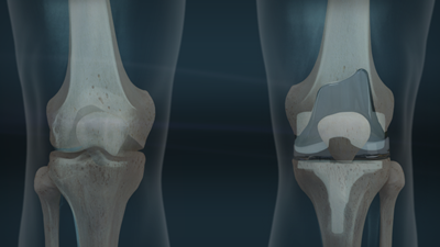 knee implant x-ray