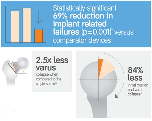 TRIGEN INTERTAN Solution:  lower risk of implant failure and non-union