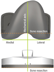 Traditional TKA Implants