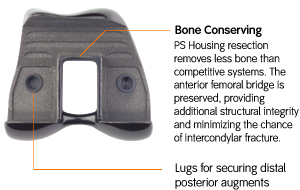 Bone Conserving