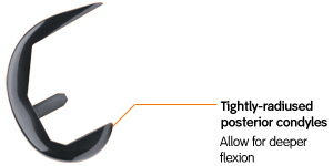 Tightly-radiused posterior condyles | Allow for deeper flexion