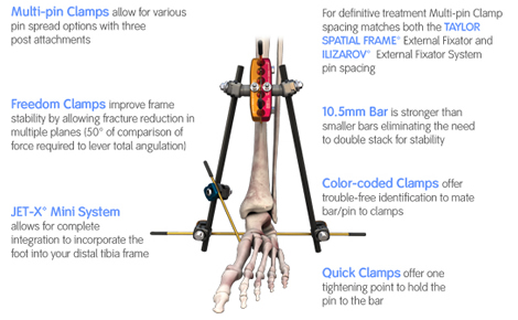 JET-X External fixation overview