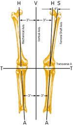 Orientation to the mechanical axis of the knee
