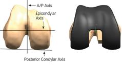Image showing placement of device along A/P, Epicondylar and Posterior Condylor axis.