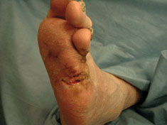 acticaot 7 results case study neuropathic foot ulceration 2