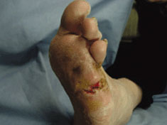 acticaot 7 results case study neuropathic foot ulceration