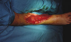 Acticoat case study traumatic wound 2