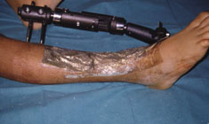 Acticoat case study traumatic wound 5