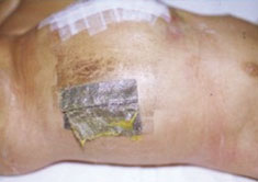 Acticoat case study 2 acute wound 2