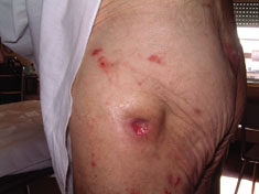 Acticoat case study3 pressure ulcer2