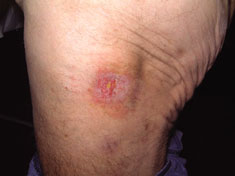 Acticoat case study3 pressure ulcer3