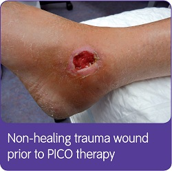 PICO Hard To Heal Case Study 1