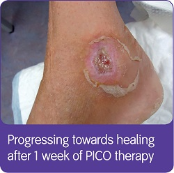 PICO Hard To Heal Case Study 3